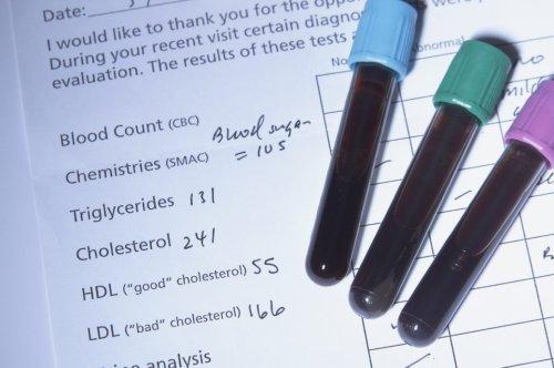 Worauf ist bei den Cholesterin-Werten HDL, LDL und Triglyceride zu achten?