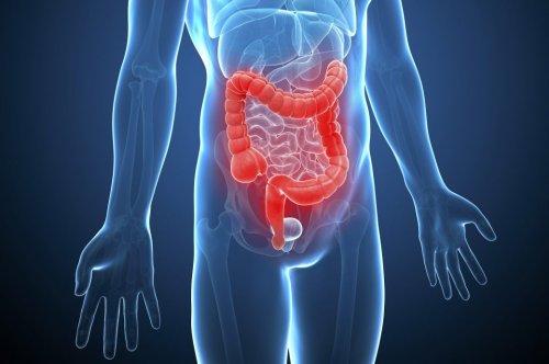 Morbus Crohn – Symptome, Risikofaktoren, Behandlung