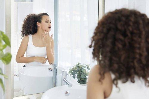 Hormonelle Akne: So bekämpfst du sie ohne Hormone