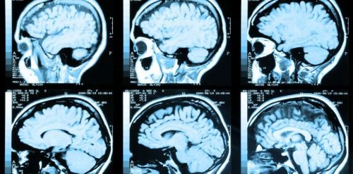 Diet Invented by Scientists Found To Strengthen the Brain and Cut Alzheimer's Risk