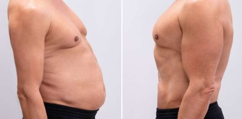 How To Lose Weight Fast for Men: 7 Scientific Ways To Drop Pounds
