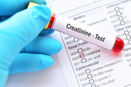 What Should Your Creatinine Levels Be at Every Age — Plus More On High Levels