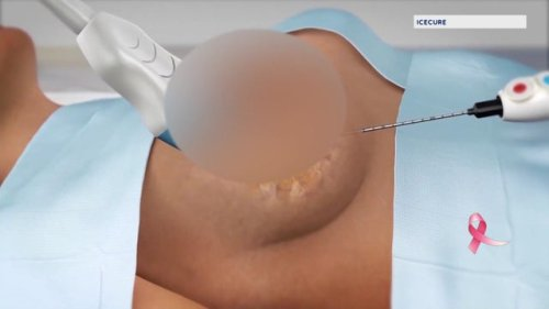 Cutting-edge breast cancer procedure may save thousands of women
