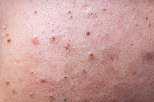 Best Blackhead Pops from Dr. Pimple Popper