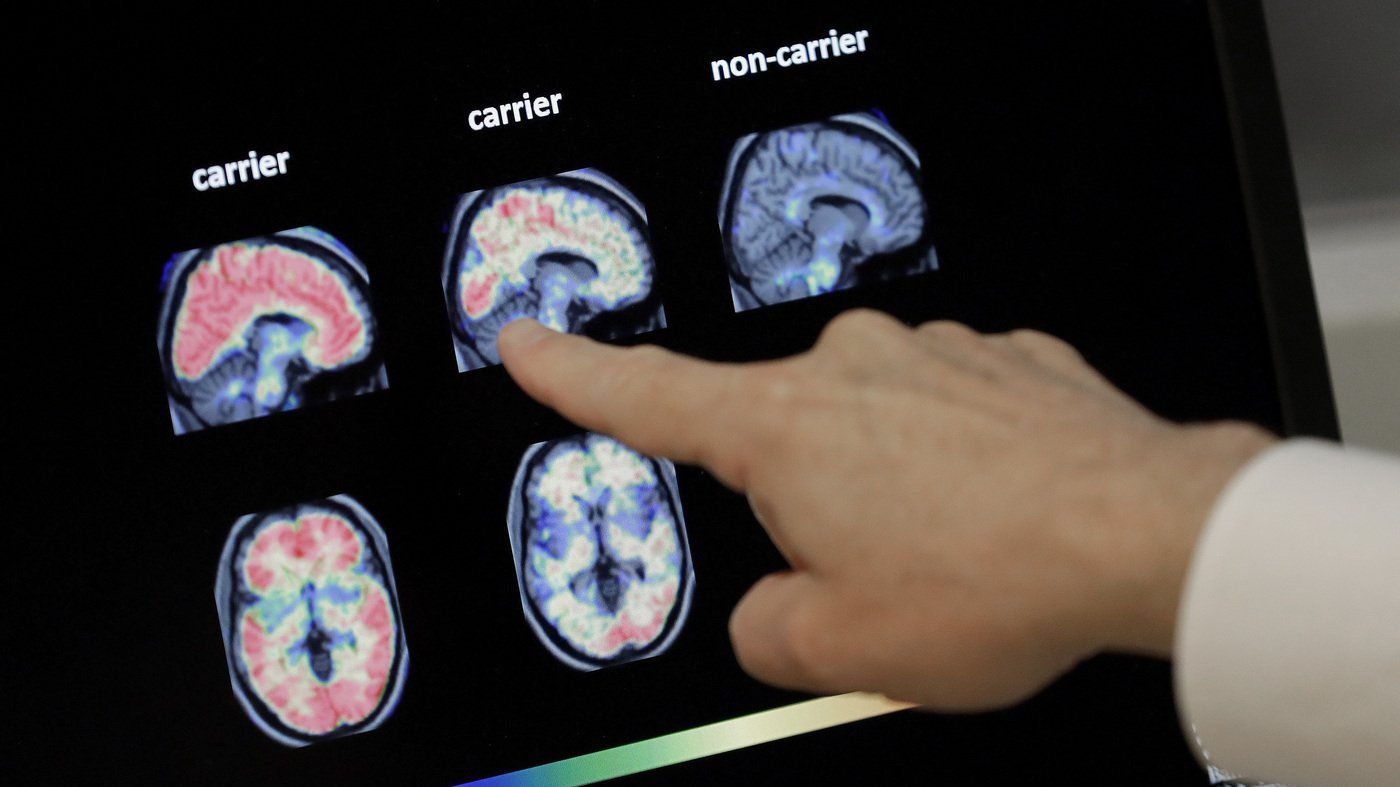 Why the FDA's Approval of Biogen's Alzheimer's Drug is So Controversial