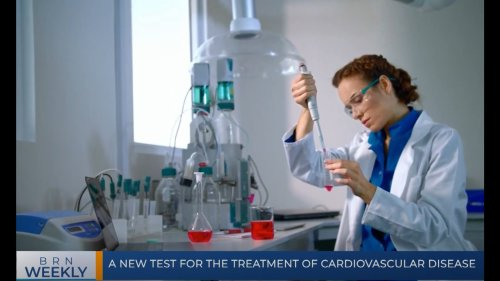BRN Weekly   A new test for the treatment of cardiovascular disease