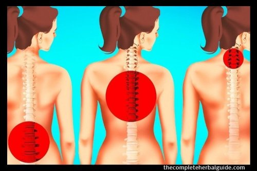 The Ultimate Guide On How To Get Rid Of Back Pain