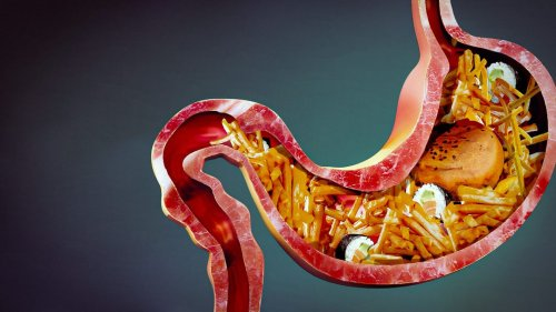 What If Your Stomach Acid Disappeared?