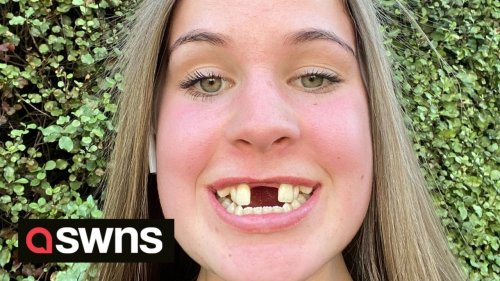 Kiwi woman whose front teeth were 17MM APART stuns TikTok with smile transformation