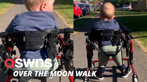 UK baby who received pioneering keyhole surgery while in the womb takes his first steps (RAW)