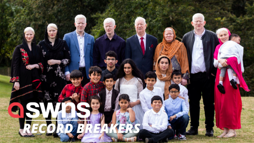 Meet the world's biggest albino family - a British clan of 15