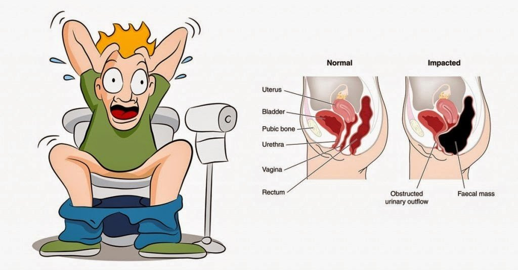 The Ultimate Guide On How To Cure Constipation From Home