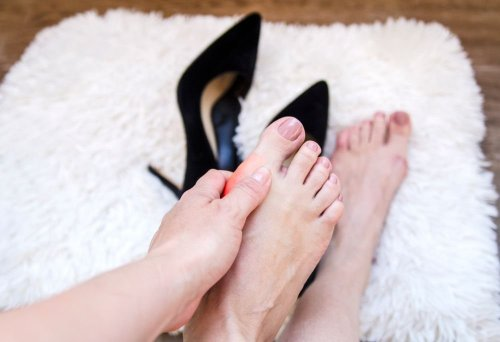 Bunions: Symptoms, Causes, and Treatment