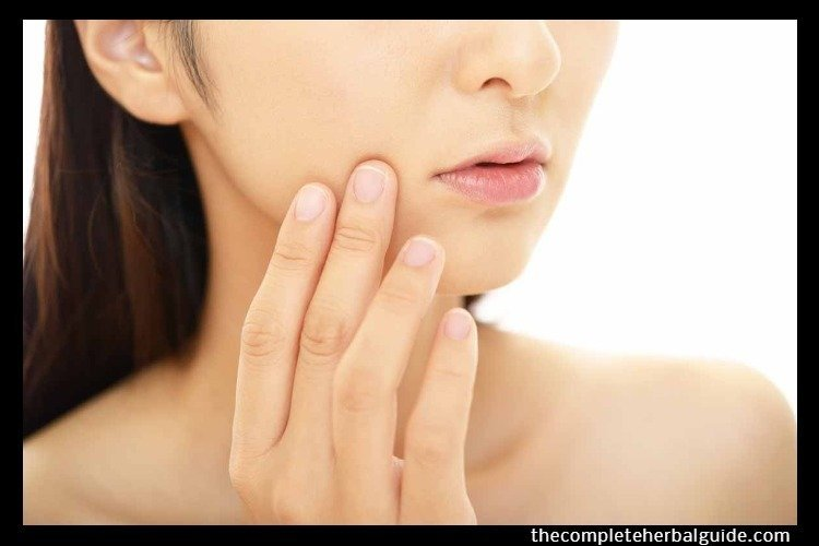 The Ultimate Guide On How To Cure Acne from Home