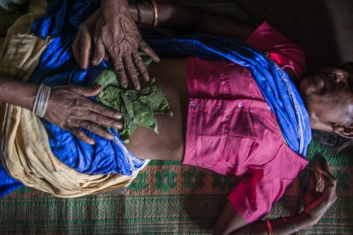 Nearly Half Of All Abortions Unsafe In Developing Countries
