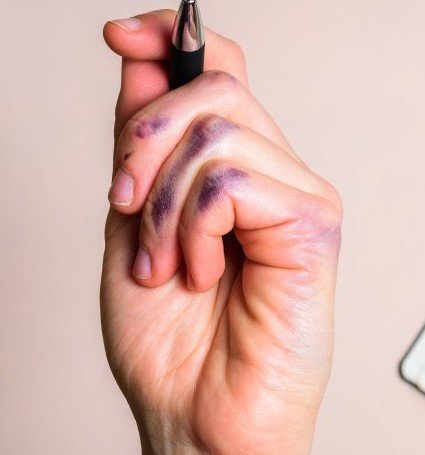 The Real Reason Some People Are Left-Handed
