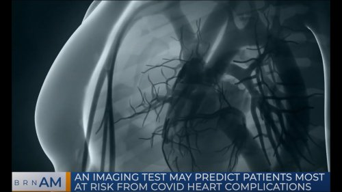 BRN AM   An Imaging Test May Predict Patients Most at Risk from COVID Heart Complications