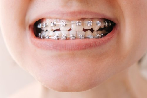 Best & Worst Foods To Eat With Braces