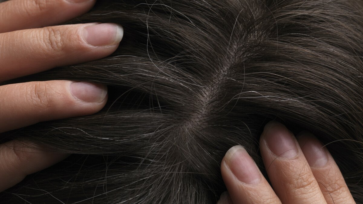 Yes, We Can Reverse Gray Hair — Here's How