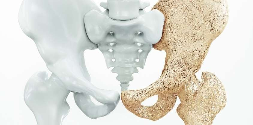 At a Certain Age, You Need Exercises That Prevent Bone Loss. Start With These.
