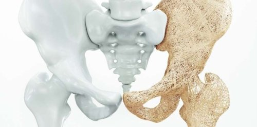 Before Turning 65, Start These Exercises to Prevent Bone Loss.
