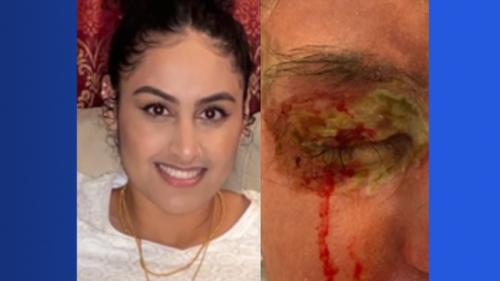 Hofstra University student injured in acid attack in Elmont seeks justice