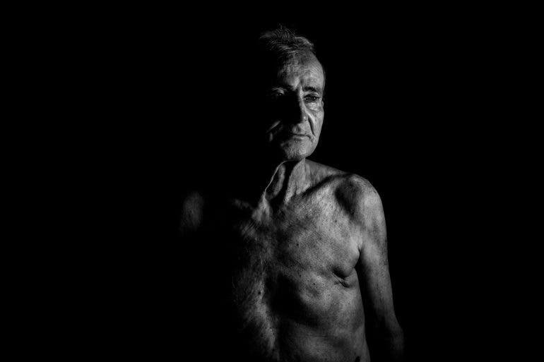 15 Photographers Talk About Cancer, and How it Affected Them