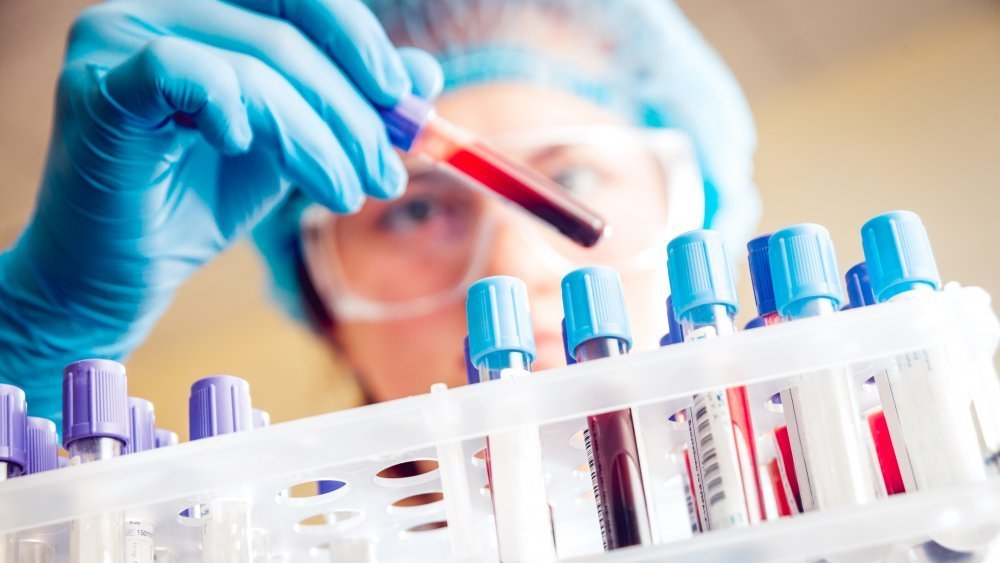 Ways Your Blood Type Can Affect Your Health