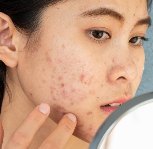 Surprising Things Your Acne Can Reveal About Your Health
