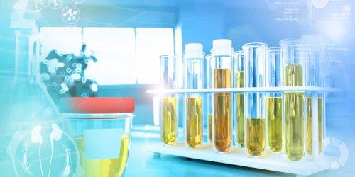 Trüber Urin, Blut, Geruch: 9 Alarmsignale im Urin, auf die Sie dringend achten sollten