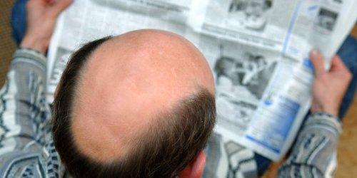 """""""Viele Menschen leiden darunter"""": Erlanger Forschern gelingt Durchbruch gegen Haarausfall - wohl ohne Nebenwirkungen"""