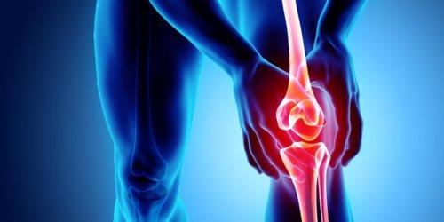 Von der PECH-Regel bis zur OP: 5 Gründe für Knieschmerzen und was Sie jetzt dagegen tun können