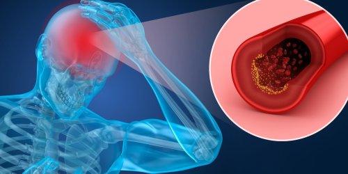 Verantwortlich für kurzzeitigen Impf-Stopp: Fataler Klump-Effekt: Ärzte entschlüsseln, warum Astra-Geimpfte Thrombosen bilden