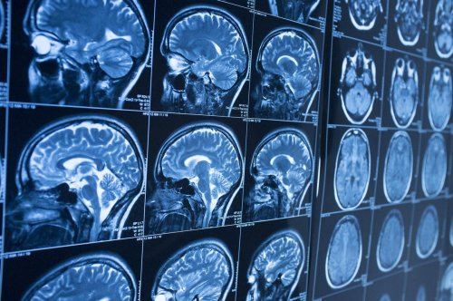 Study Documents Changes In Brain After Covid-19 Infection