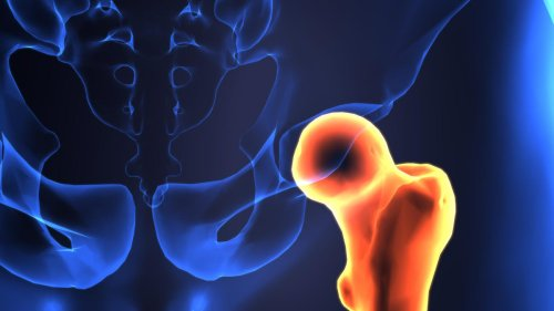 Is Your Heartburn Medication Putting You At Higher Risk For A Hip Fracture?