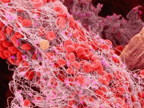 Researchers Develop AI Algorithm To Diagnose Deep Vein Thrombois