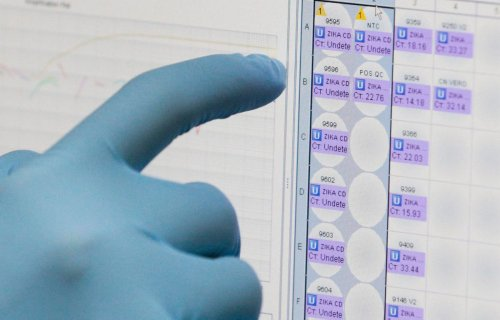 Zika Testing Mistakes Require Re-Testing Of Over 400 Specimens
