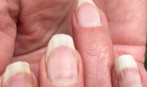 'COVID Nails' Beau's lines may indicate previous infection