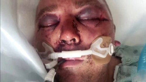 Florida man brutally beaten, put in a coma after asking neighbors to lower music