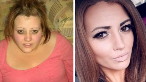 Woman loses 171 pounds after seeing a picture of herself at a party