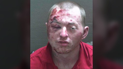 Florida man badly loses fight with police, K-9