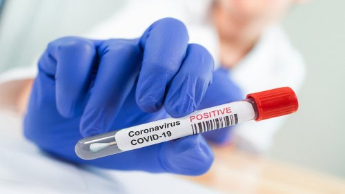 Oxford challenge trial assessing coronavirus reinfection, immune responses