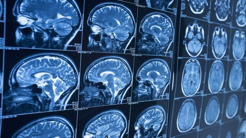 Brain scans of coronavirus patients suggest 'significant' grey matter loss over time: study