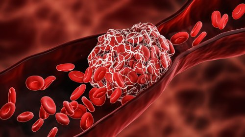 Who is at risk for developing blood clots?