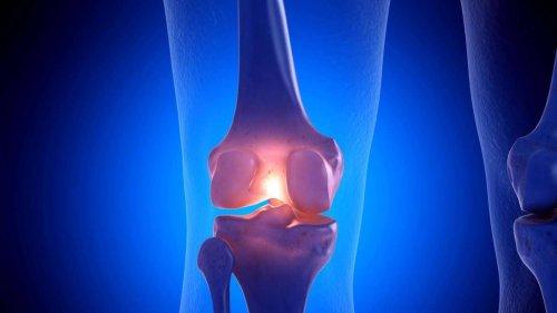 """""""Meilenstein"""" in Arthrose-Forschung: Durchbruch bei unheilbarer Krankheit"""