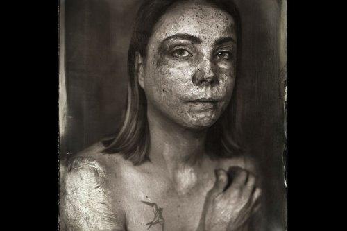 """""""Quand est-ce que vous avez vu un brûlé dans la rue ?"""" : le photographe Clément Marion expose ses portraits à Besançon"""