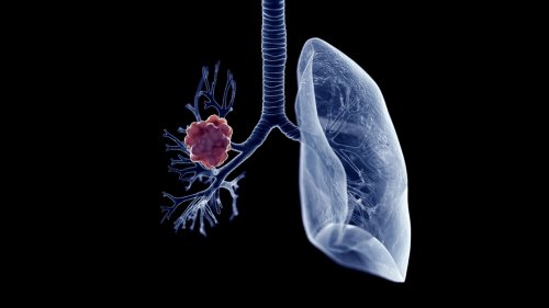Johns Hopkins has developed a lung cancer blood test