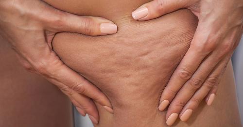 Beauty: Faktencheck der 4 gängigsten Cellulite-Mythen | freundin.de