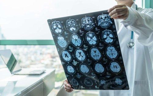 L'infection au coronavirus provoque des petites fuites de sang dans le cerveau