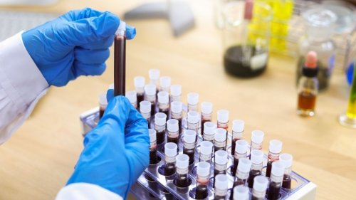 Why type A blood may increase COVID-19 risk